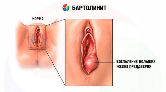 На фото показано заболевание бартолинит