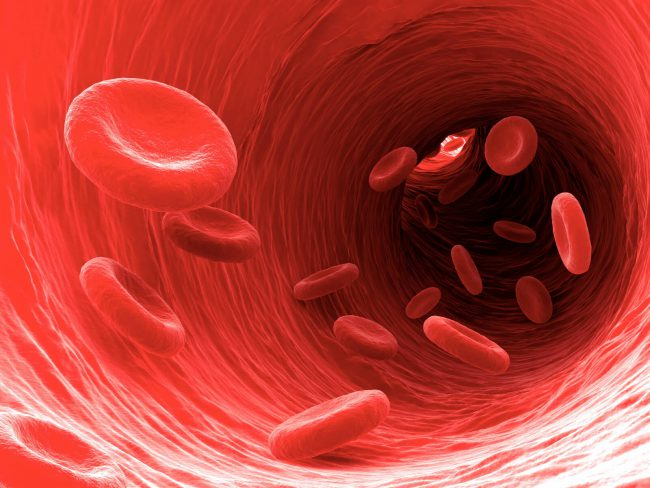 Часто причиной базофилии бывает дефицит железа в организме