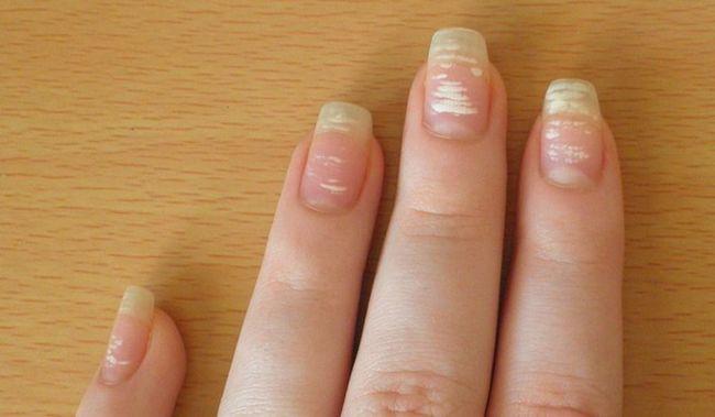 Белые пятна на ногтях - это не косметический дефект, а заболевание