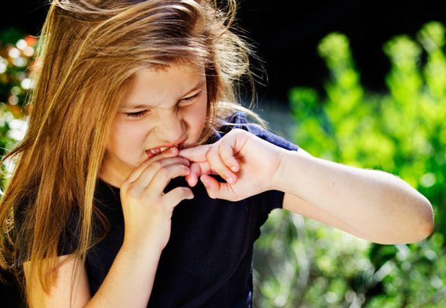 Белые пятна на ногтях могут появиться из-за привычки обгрызать ногти