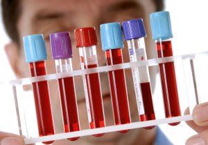 Биохимический анализ крови назначается в том случае, когда при общем анализе не совсем понятно состояние организма и требуются более подробные данные для определения сути проблемы
