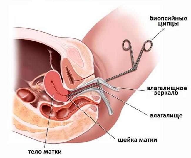 Чаще всего выполняется эксцизионная биопсия, во время операции опухоль удаляется и направляется на срочное исследование, если полученный результат подтверждает рак, то далее выполняется более радикальная операция