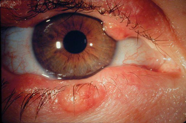 При возникновении блефарита женщинам следует отказаться от использования косметики для глаз