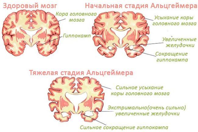 Во время тяжелой стадии Альцгеймера происходит сильное усыхание коры головного мозга
