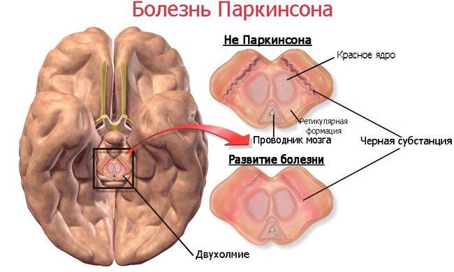 Болезнью Паркинсона развивается у 4% людей старше 50 лет
