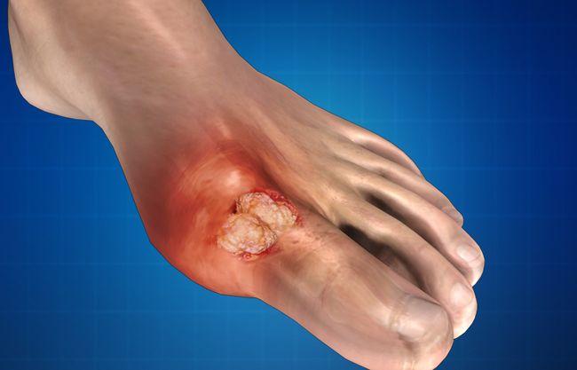 """Подагру также называют """"болезнью королей"""", так как это заболевание суставов сотни лет возникает по причине неправильного питания и употребления алкоголя"""
