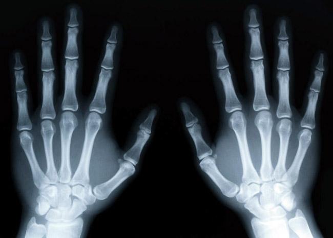 Подагра - одно из опасных заболеваний суставов и тканей, при отсутсвии своевременного лечения, у пациента может развиться подагрический артрит