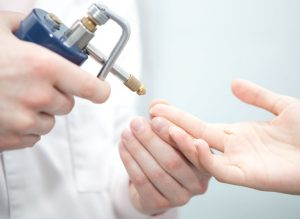 Способов для удаления бородавок в дерматологии просто уйма, поэтому подобрать именно тот вариант, который будет приятен по цене не составит особого труда