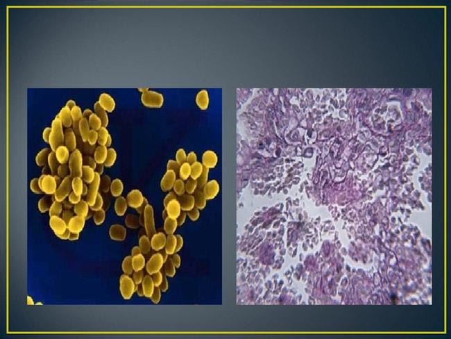 Бруцеллы – аэробные, микроаэрофильные грамотрицательные бактерии