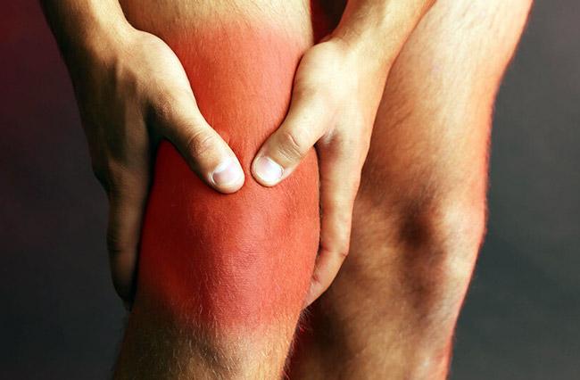Бурсит коленного сустава – воспалительный процесс, который затрагивает бурсы суставов