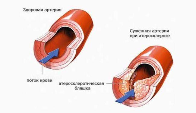 При гипертонии следует не забывать о чистке сосудов