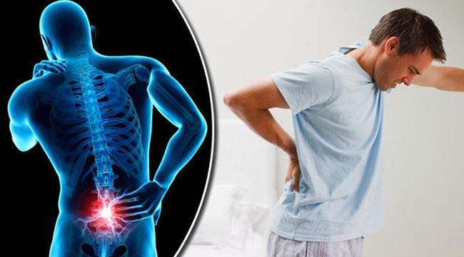 Люмбаго – это резкий приступ боли в пояснице длительностью от нескольких минут до нескольких часов, в большинстве случаев возникающий вследствие остеохондроза и его осложнения – межпозвонковой грыжи