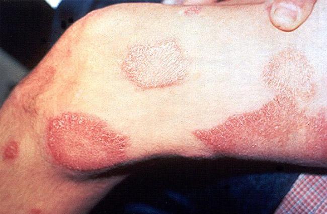 При туберкулоидном типе заболевания преимущественно поражаются нервная система и кожа