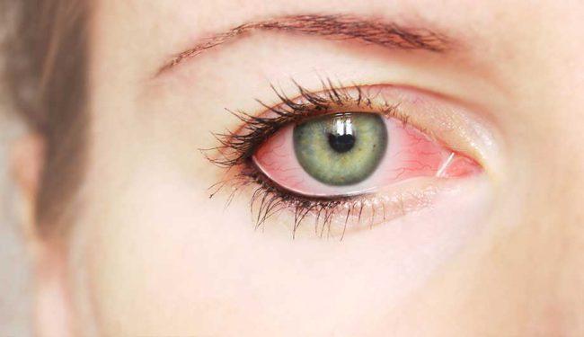 Конъюнктивит у взрослых является распространенным и заразным заболеванием
