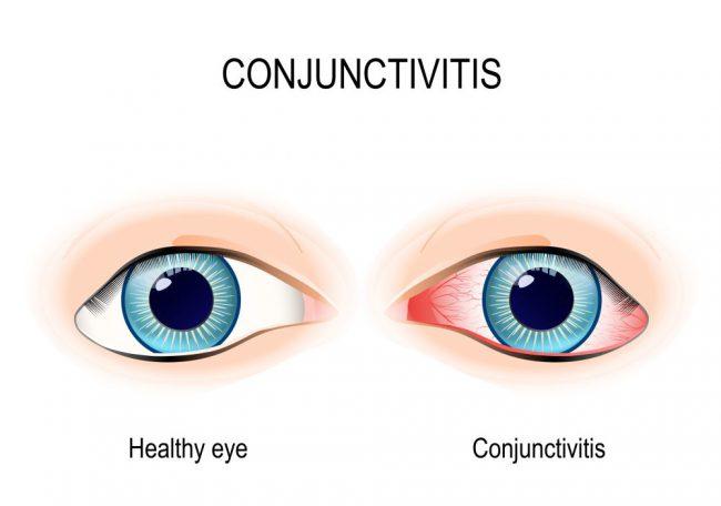 Конъюнктива поражается самыми разнообразными факторами, такими как грибки, вирусы и бактерии