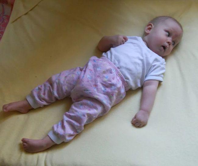 Одним из признаков ДЦП считается, если малыш не держит голову