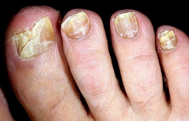 Ватный диск смачивают лекарством, прикладывают к ногтю, закрывают полиэтиленом, перебинтовывают. Компресс держат 5 дней, меняя два раза в день