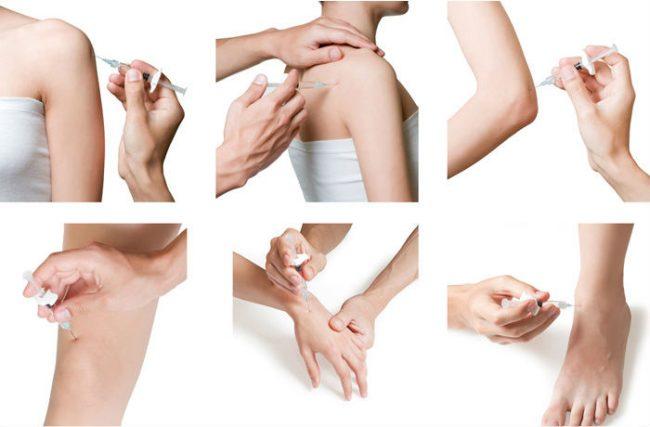 Изображение - Дексаметазон при заболевании суставов deks5-e1502434543831