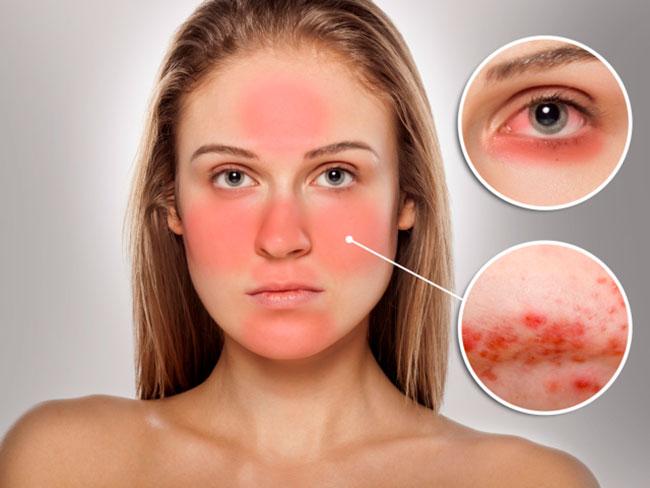 Зачастую заболевание развивается постепенно, сначала на лице могут появиться розовые или красноватого оттенка пятна, которые переходят в небольшую угревую сыпь, которая причиняет пациенту сильный зуд и отечность
