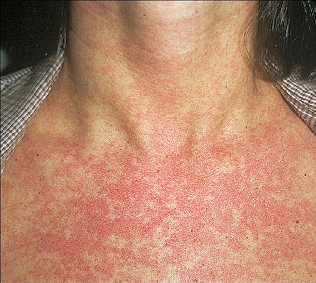 Проявления инфекционного дерматита - болезнь возникает при развитии инфекционных заболеваний – кори, скарлатины