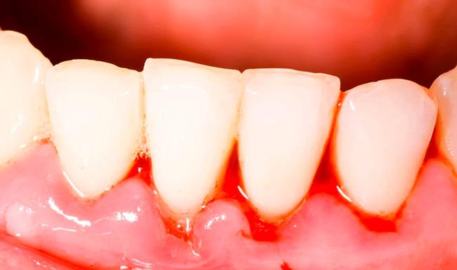 Кровоточивость десен необходимо лечить сразу при первых проявлениях, чтобы избежать развития сопутствующих стоматологических заболеваний