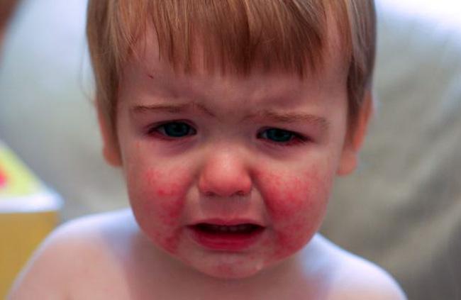 Диатез – распространенное заболевание у ребенка грудного возраста, оно связано с недостаточной зрелостью иммунной системой малыша