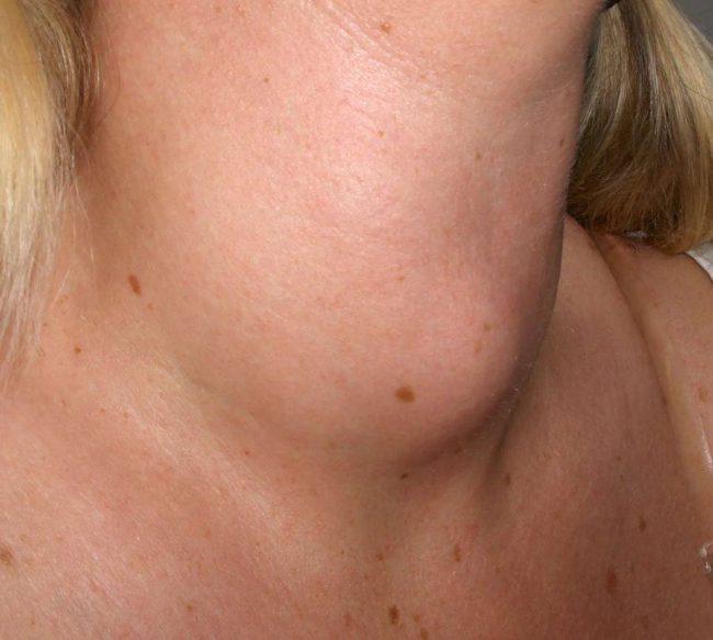 Нарушение воспроизводства гормонов щитовидки (большее или меньшее их количество, чем необходимо организму) влияет на изменение внешнего вида железы и структуры её ткани