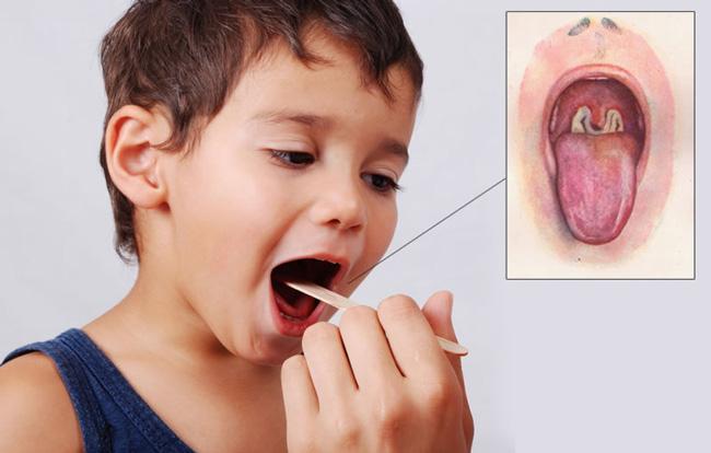Чаще всего, в первую очередь, возбудитель поражает глотку и гортань, реже, половые органы, нос или кожный покров