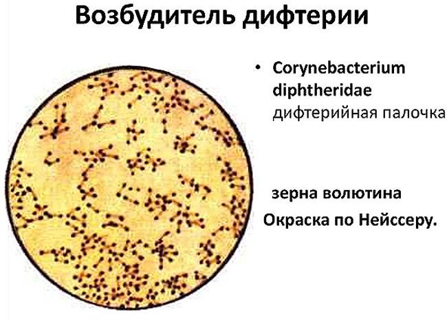 Бацилла Леффлера из рода коринебактерий - возбудитель дифтерии