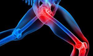 Не зря говорят, что Диклофенак эффективен для уменьшения боли вследствие травмы или растяжения, при этом он еще без проблем справляется с отечностью