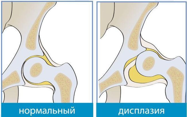 На фото показана дисплазия тазобедренного сустава