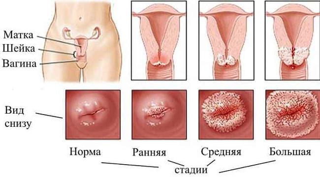 По степени структурных изменений тканей и глубины проникновения атипичных клеток в эпителий, различают три стадии дисплазии шейки матки