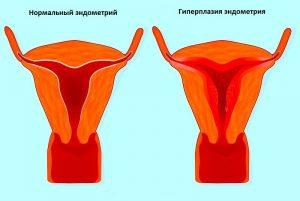 Факторов возникновения эндометриоза уйма: начиная от обычной генетической предрасположенности и заканчивая гормональными нарушениями, последствиями аборта и прочее