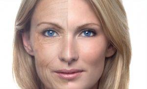 Из-за нехватки уровня эстрогенов в организме женщины может наступить преждевременное старение кожи, что особенно характерно при климаксе
