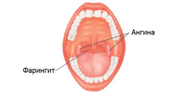 Часто заболевание путают с ангиной, хотя фарингит у взрослых отличается специфичными симптомами