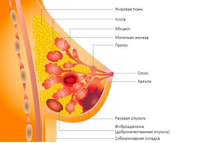 В подростковом возрасте фиброаденомы имеют свойство развиваться на фоне нарушений менструального цикла, а в репродуктивном возрасте - на фоне приема противозачаточных препаратов и вследствие абортов