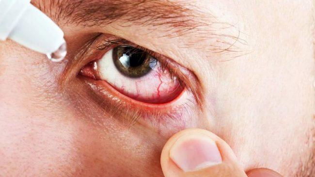 Флоксал используют по 1 капле в пораженный глаз 2-4 раза в сутки. Закапывать в нижний конъюнктивальный мешок