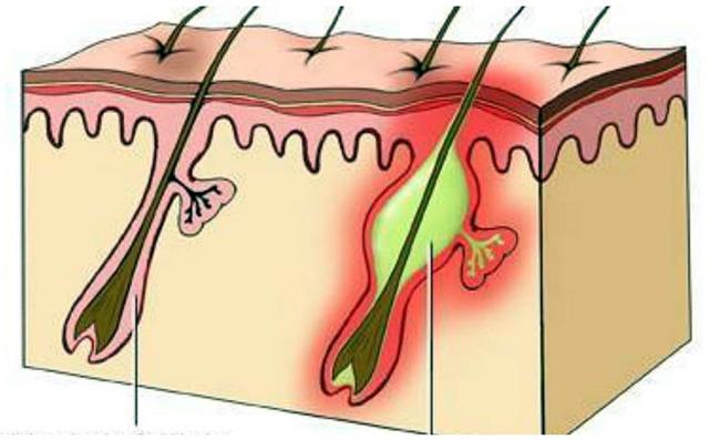 Присутствие на коже штаммов золотистого стафилококка - основная причина возникновения фурункулеза