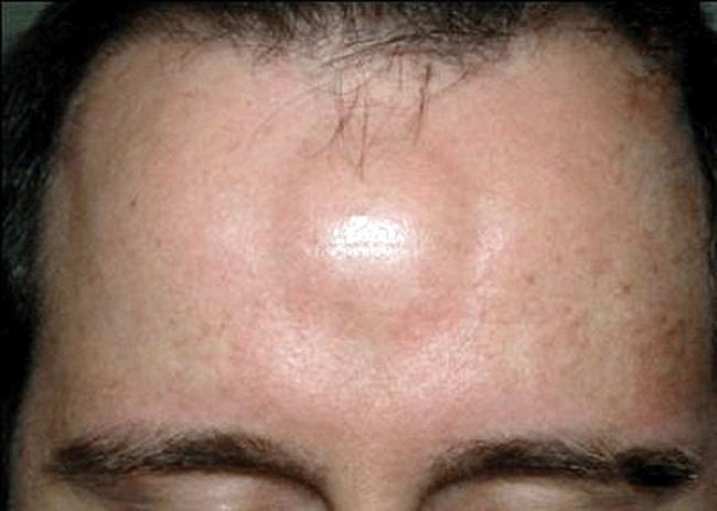 На первой стадии фурункула, вокруг волосяного фолликула появляется небольшое покрасневшее возвышение, не имеющее выраженных четких границ, температура в этом месте повышается, болезненных ощущений практически нет