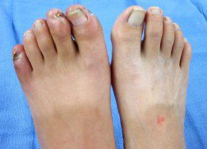 На фото гангрена нижних конечностей, пальцев ног, в начальной стадии. Определить наличие проблем с кровотоком можно и в домашних условиях, но анализы и консультация специалиста - это все же необходимое мероприятие для собственного спокойствия.