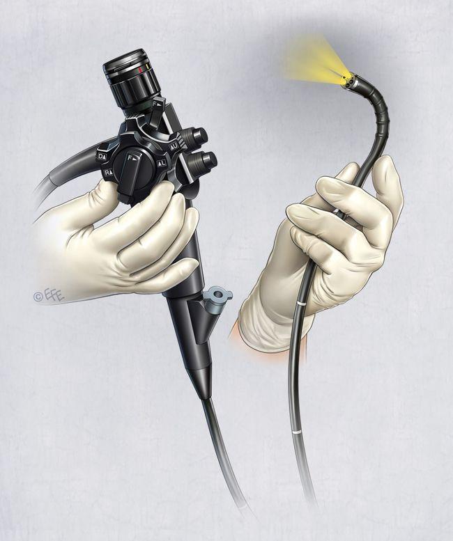 Гастроскопия, иначе известная как эзофагогастродуоденоскопия, или просто ЭГДС – это один из методов осмотра внутренних органов с использованием эндоскопа