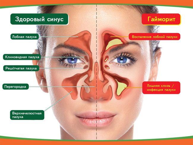 Здоровый синус и гайморит - различия