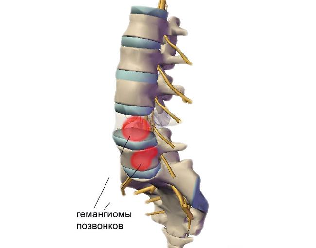 Гемангиома позвоночника – это доброкачественная опухоль на позвоночнике, образованная из сосудов, характеризуется медленным ростом