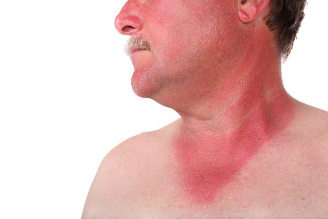 Вследствие поражения сосудов и кровоизлияний в разгаре болезни возможно развитие инфекционно-токсического шока