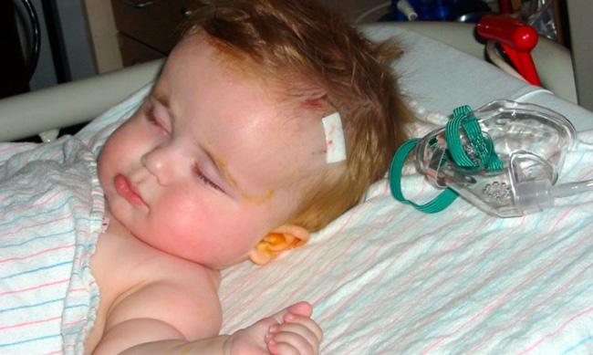 У детей Гидроцефалия чаще всего развивается вследствии внутриутробных причин
