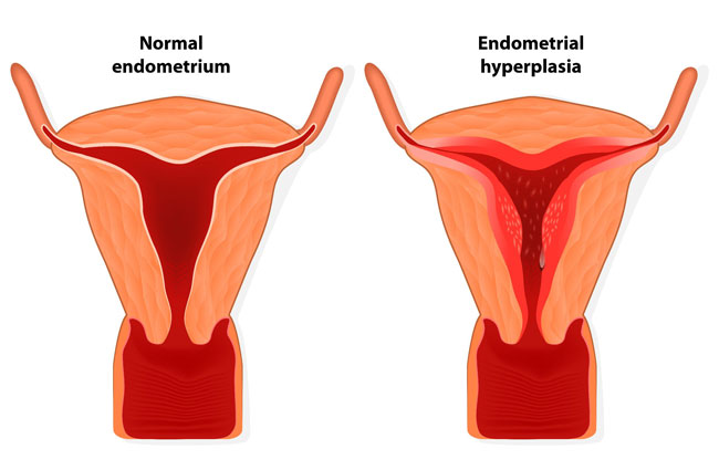 Основной симптом заболевания — маточные кровотечения разной интенсивности, которые появляются в межменструальный период или после задержки месячных