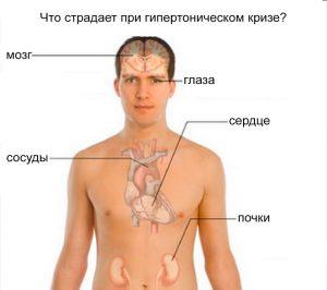 Гипертонический криз наносит вред практически всем органам в организме, т.к. во время криза организм испытывает чрезмерные нагрузки.