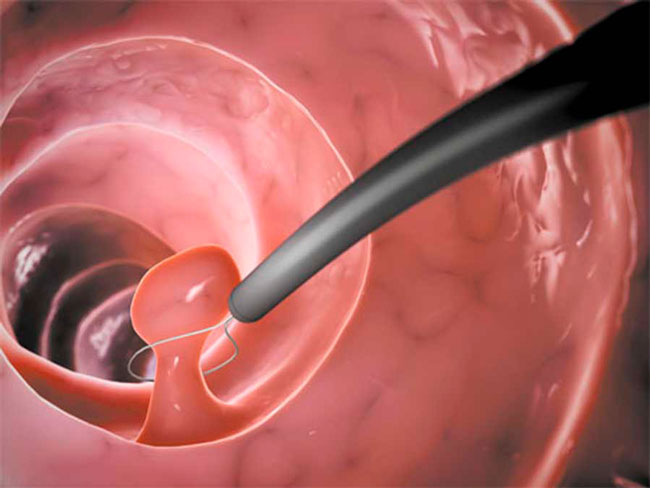 Во время гистероскопии удаление полипа происходит с помощью кюретки (если он небольшой), специальных ножниц или петли (для более крупного), которыми он перерезается или откручивается его ножка