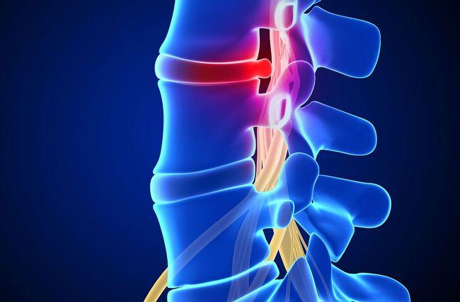 Грыжа поясничного отдела позвоночника - одна из частых распространенных патологий позвоночника