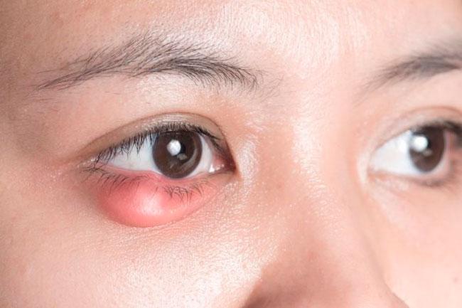 Закупорка выводного протока железы может произойти на фоне простудных заболеваний, вследствие воспаления краев век, при заболеваниях эндокринной системы, а также при ненадлежащей гигиене век